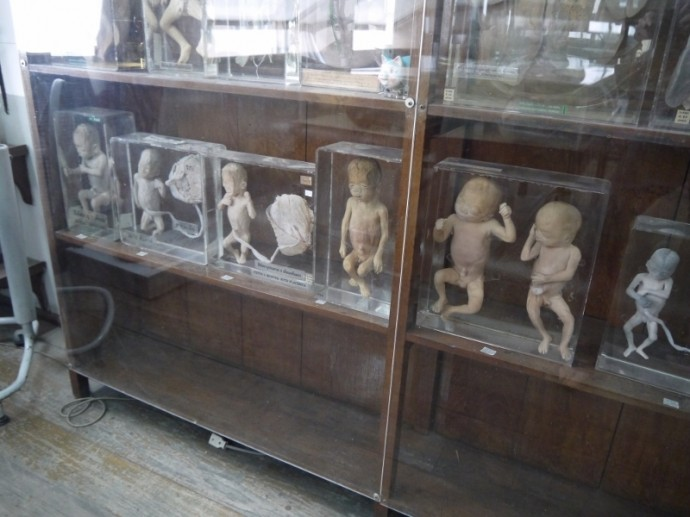 Displays At Anatomical Museum, Bangkok