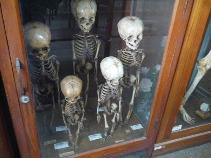 Child Skeletons