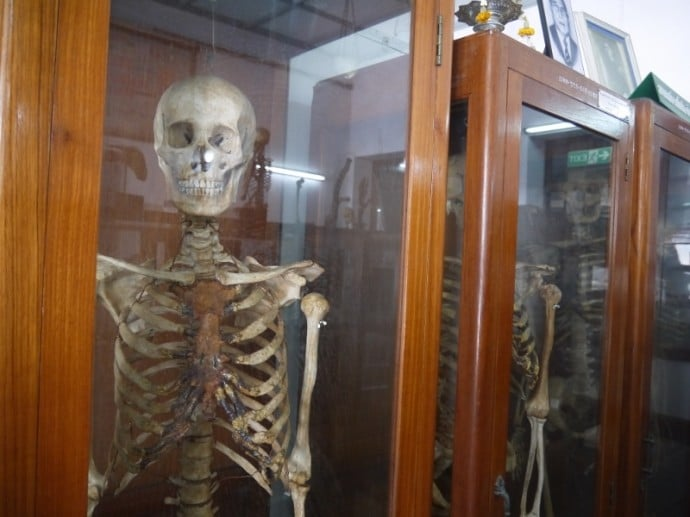 Skeletons On Display