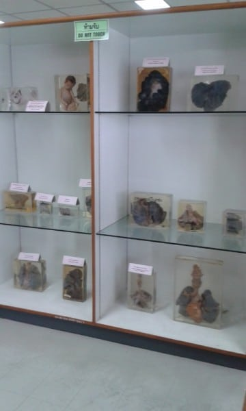 Displays At The Forensic Museum, Bangkok