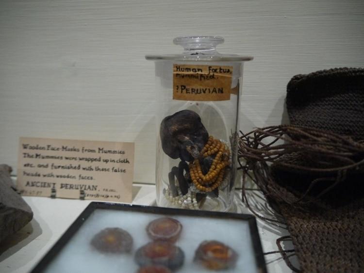 Peruvian Fetus Wearing An Earring At Pitt Rivers Museum, Oxford